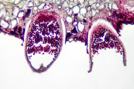 Parasitic plant fungus Puccinia microscope slide. 版權商用圖片