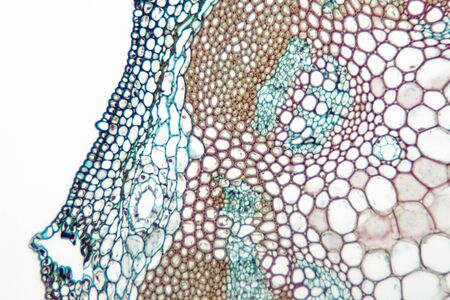 Microscope view of Helianthus (sunflower) stem.