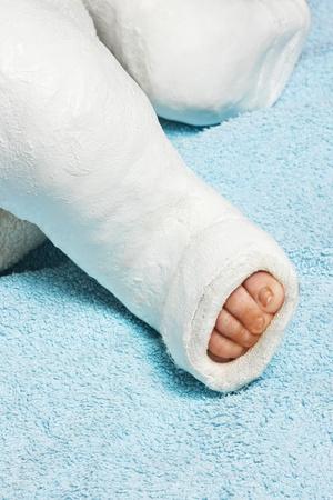 pierna rota: Sección baja de la pierna del bebé del niño con vendaje de yeso en la manta