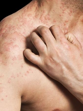 dermatologo: Uomo che graffia la pelle allergica