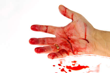 carnage: A knife smeared with blood. A murder weapon.