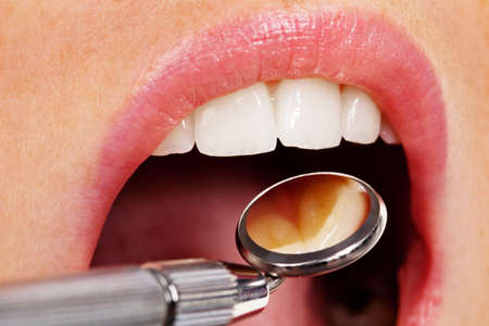 implants: Teeth of a young woman to be examined by the dentist in the dental practice