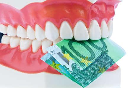billets euro: Un modèle dentaire chez le dentiste avec des billets en euros. Coût de la Santé.