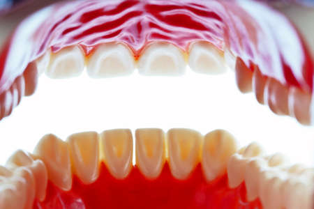 implants: The model of a tooth. Lies on a white background