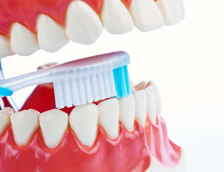 precaution: A dental model with a toothbrush when brushing teeth. Brushing teeth prevents tooth decay. Stock Photo