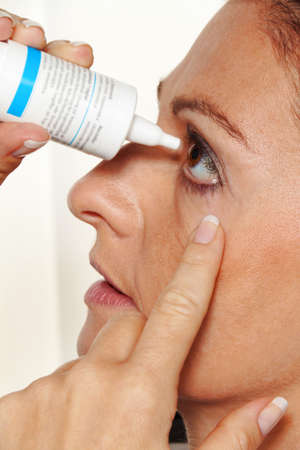 woman with eye drops and allergy. hay fever. instillation of the eye. Stock Photo