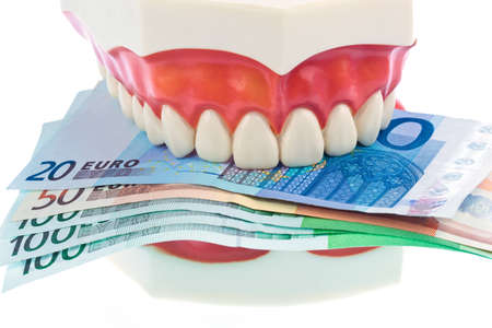 surgery expenses: a dental model with euro notes