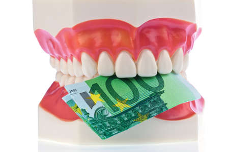 surgery expenses: a dental model to the dentist with euro notes  costs for health  Stock Photo