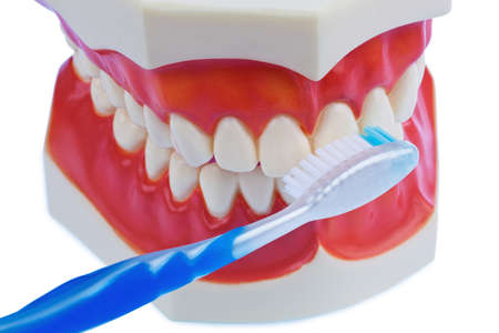 modell: a dental model with a toothbrush when brushing teeth. brushing prevents caries. Stock Photo