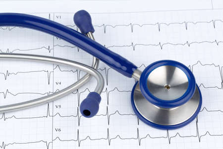 physican: stethoscope and electrocardiogram, symbol photo for heart disease and diagnosis Stock Photo
