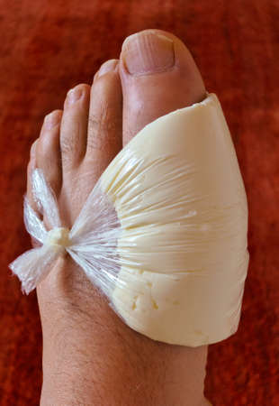 gout: a wrap of quark for gout, home remedies versus allopathic medicine