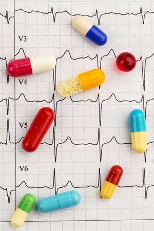 arrhythmias: several tablets lie on an ekg. symbolic photo for diseases of the heart and circulation