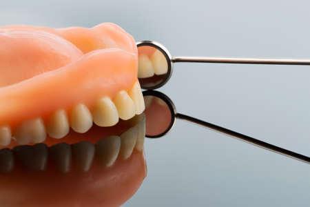 surgery expenses: teeth and mouth mirror, symbol photo for dentures, diagnosis, and co-payment