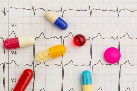 arrhythmias: several tablets lie on an electrocardiogram graph Stock Photo