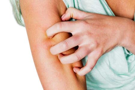 moscerino: una donna ha dopo una zanzara mordere un prurito e graffi Archivio Fotografico