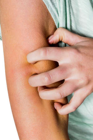 gnat: a woman has after a mosquito bite an itchy skin and scratching