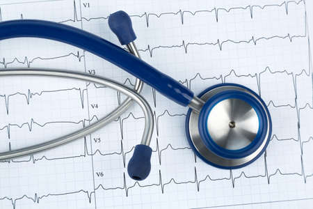 physican: stethoscope and electrocardiogram, symbolic photo for heart disease and diagnosis