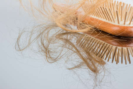 a hair brush with haeren. beginning of hair loss and alopecia Foto de archivo