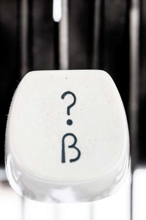 contentious: question mark on an antique typewriter. symbolic photo for questions and answers Stock Photo