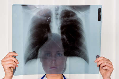 physicans: practitioner with x-ray image. symbolic photo for work at the hospital.