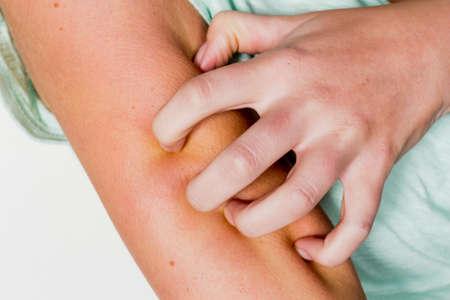 een vrouw heeft een muggenbeet een jeukende huid en krassen Stockfoto