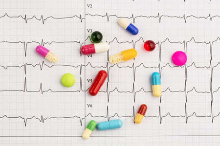 infarct: several tablets lie on an ekg. symbolic photo for diseases of heart and circulation Stock Photo