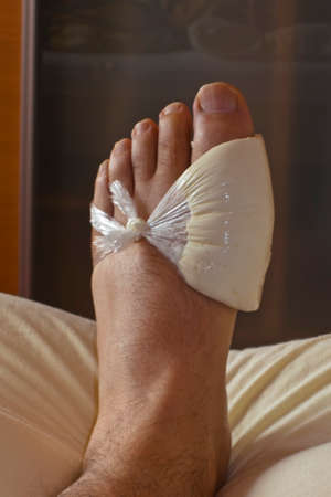 conventional: a winding from quark for gout, home remedies versus conventional medicine