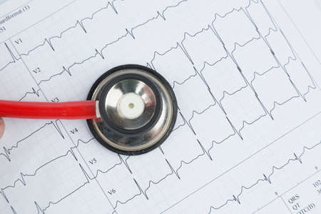 physicans: stethoscope and electrocardiogram, symbolfoto for heart disease and diagnosis