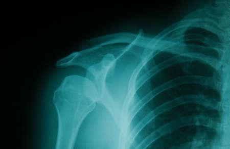 dislocation: imagen de la película de rayos X hombros óseas, trastornos del hombro.