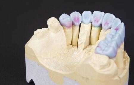 prothetic: closeup for a mock up of a dental circular bridge