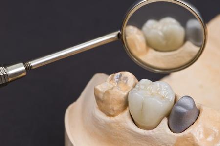 laboratorio dental: Primer plano de una corona de cer�mica dental para los dientes molares en un modelo de reparto