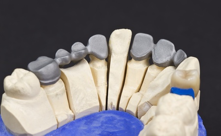 inferior: metal framework of a dental bridge on  a cast model
