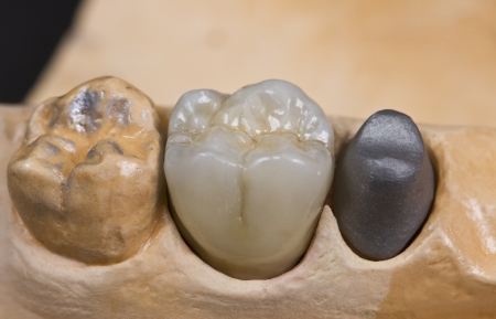 prosthesis: closeup for a ceramic dental crown for a molar teeth on a cast model