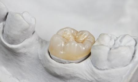 onlays: Primer plano de onlay dental de un diente molar aparecerá en el modelo de yeso