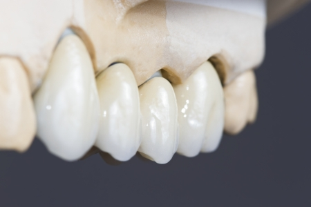 closeup for a dental ceramic bridge ona  cast model