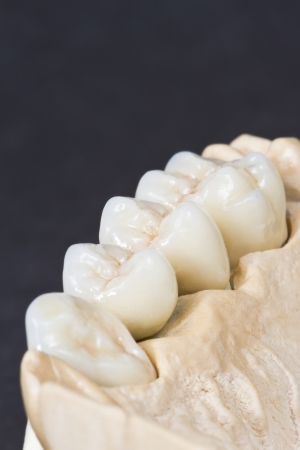prothese: Nahaufnahme einer Dentalkeramik Br�cke ona Gipsmodell