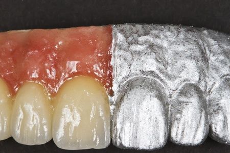 proffessional: artificail ceramic front teeth and gums