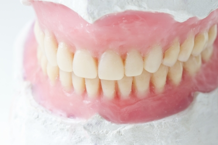 artificial teeth: mock- up, for, denta,l total, prosthesis,