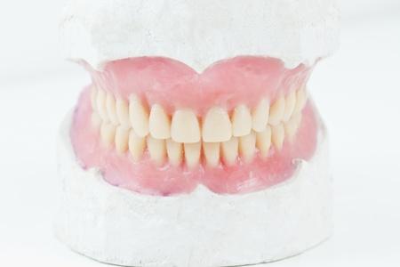 denture: mock- up, for, denta,l total, prosthesis,