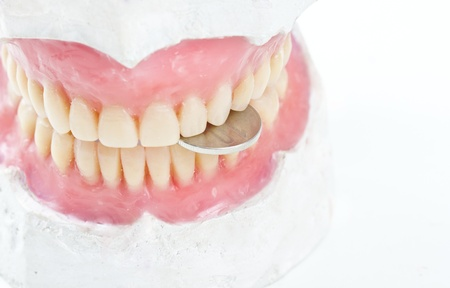 false teeth: dental prsothesis ona  gypsum model biting   a coin