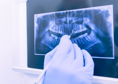 Dentist explaining patient the panoramic xray of her denture. Stock Photo