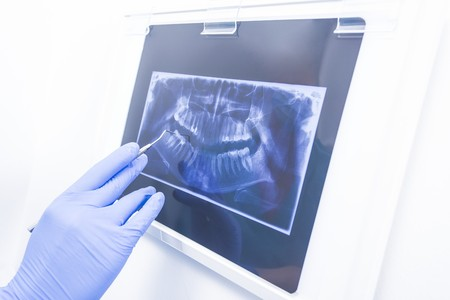 Hand in medical rubber gloves showing dental panoramic xray image. Фото со стока