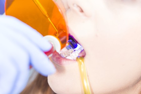 ultraviolet: Bonding composite filling material with ultraviolet light dental tool. Stock Photo