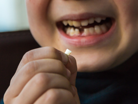 Young boy with missing front tooth, waiting for tooth fairy