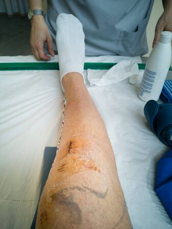 Knee Injury after Stitches have been removed  After Knee Surgery. Stock Photo