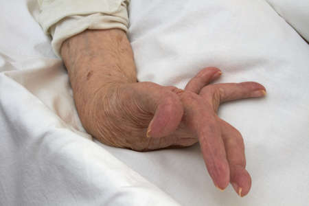 Hand of an elderly woman by arthritis, rheumatism, osteoarthritis photo