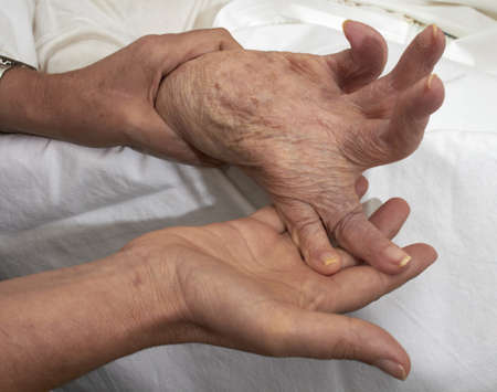 Comparison of healthy adult hands fisted older person affected by arthritis, rheumatism, osteoporosis  photo