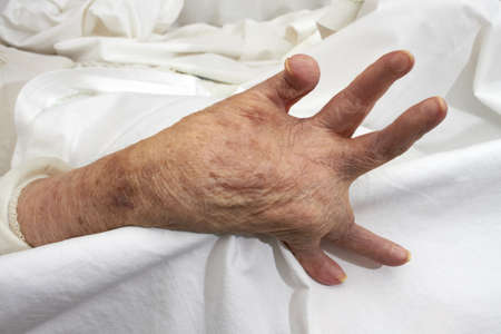 Hand of an elderly woman by arthritis, rheumatism, osteoarthritis photo