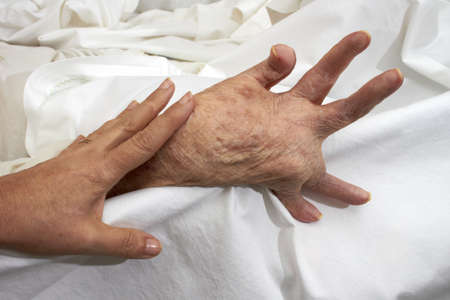 Comparison of healthy adult hands fisted older person affected by arthritis, rheumatism, osteoporosis