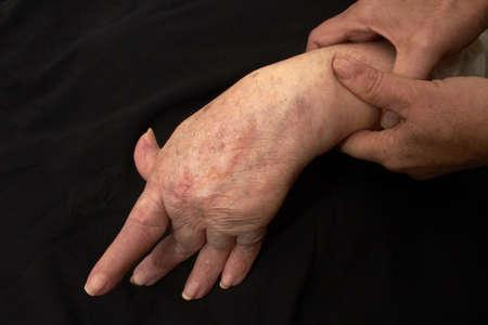 Hand of an elderly woman by arthritis, rheumatism, osteoarthritis shot on black Stock Photo